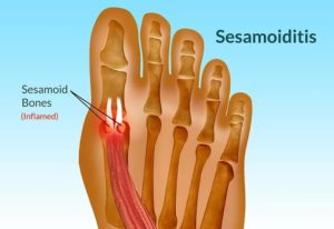 Big Toe Tendonites Sesamoiditis