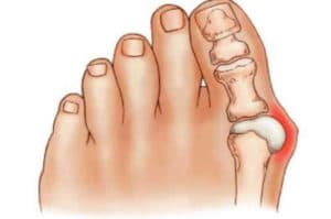 Bunion Pain in the big Toe