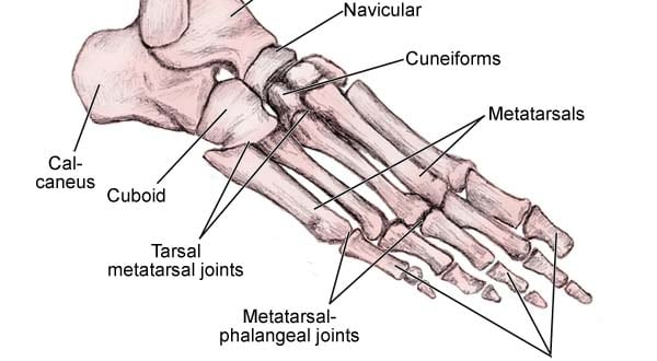 Tendonitis Peroneal